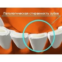 Стирание зубов, лечение и профилактика в Калининграде