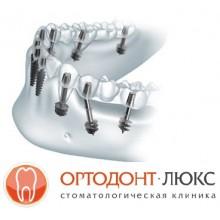 Имплантация зубов в Калининграде, плюсы и минусы базальных имплантов: