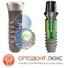 Зубные импланты в Калининграде по хорошей стоимости