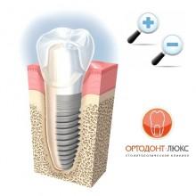 Имплантация зубов в Калининграде плюсы и минусы установки