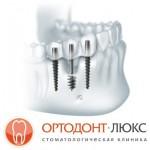 Имплантация зубов в Калининграде - зубные импланты и микроимпланты: