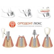 Протезирование зубов на имплантах в Калининграде