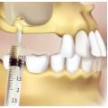 Синус-лифтинг в стоматологии при имплантации зубов
