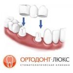 Протезирование зубов в Калининграде, самые доступные цены на коронки