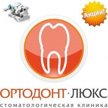 Самолигирующие брекеты в Калининграде, самолигирующие брекеты цена, акция на брекеты в Калининграде: