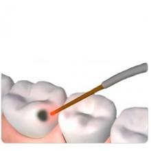Лазерная стоматология и лечение зубов в клинике Ортодонт-ЛЮКС в Калининграде