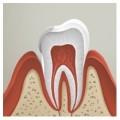 """Недоразвитие эмали зубов, гипоплазия эмали, лечение в стоматологии """"Ортодонт-ЛЮКС"""" в Калининграде:"""