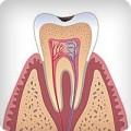 Поверхностный кариес зубов, лечение и профилактика кариеса