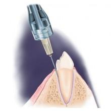 Анестезия в стоматологии, обезболивание в стоматологии Ортодонт-ЛЮКС в Калининграде: