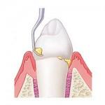 Профессиональная гигиена и чистка зубов, чистка зубов Air Flow, отбеливание зубов в клинике Ортодонт-ЛЮКС:
