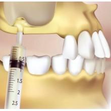 Синус-лифтинг в Калининграде в стоматологии Ортодонт-ЛЮКС: