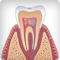 Лечение зубов и кариес зубов в стадии пятна