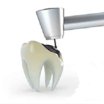 Лечение зубов без боли, лечение кариеса и пульпита в стоматологии Ортодонт-ЛЮКС в Калининграде:
