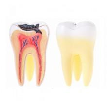 Пульпит зуба лечение в стоматологии Ортодонт-ЛЮКС в Калининграде, острая зубная боль