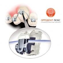 Исправление прикуса, брекеты и брекет-систамы, видео от стоматологии Ортодонт-ЛЮКС в Калининграде: