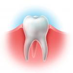 Лечение пародонтоза, лечение воспаления десен в стоматологии Ортодонт-ЛЮКС в Калининграде: