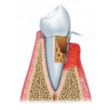 Гингивит и лечение десен в стоматологии Калининграда: