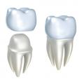 Искусственные зубные коронки