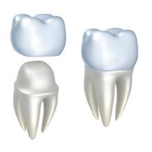 Зубные коронки в Калининграде по доступной цене