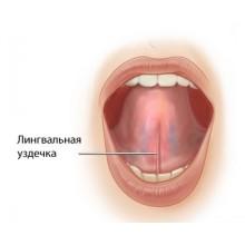 Пластика уздечки языка в Калининграде в стоматологии Ортодонт-ЛЮКС:
