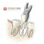 Удаление зубов в Калининграде без боли, хирургические операции в стоматологической клинике Ортодонт-ЛЮКС: