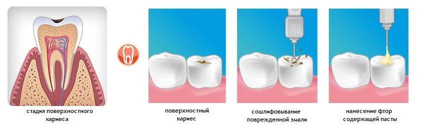 Картинки по запросу Способы лечения поверхностного кариеса