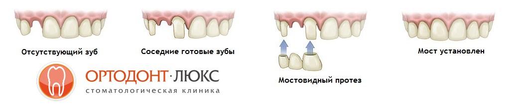 мостовидные зубные протезы в Калининграде