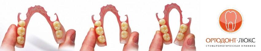 Нейлоновые зубные протезы в Калининграде