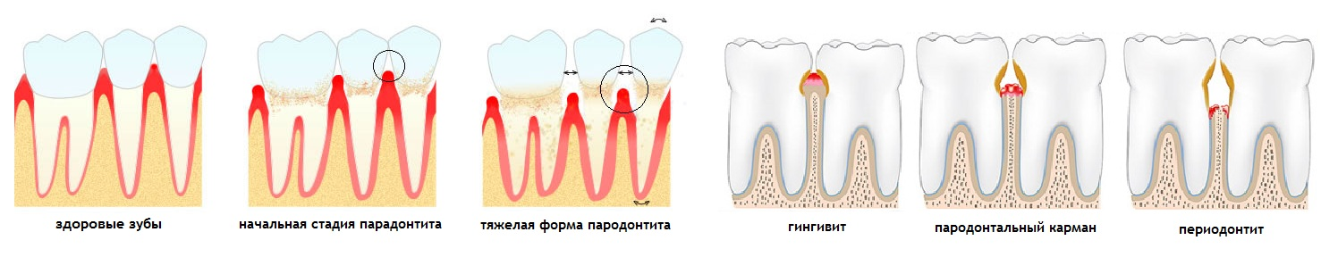 parodontit-kaliningrad-parodontoz
