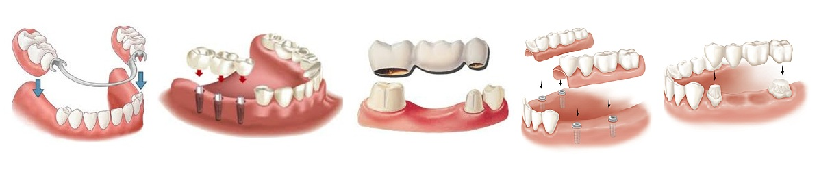 виды зубные протезы в Калининграде